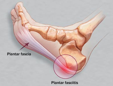 Plantar_fasciitis